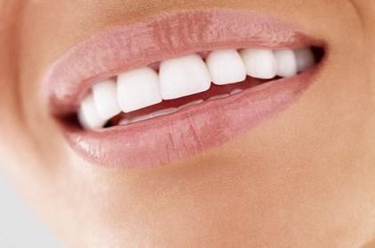 حافظي على صحة أسنانك في العيد