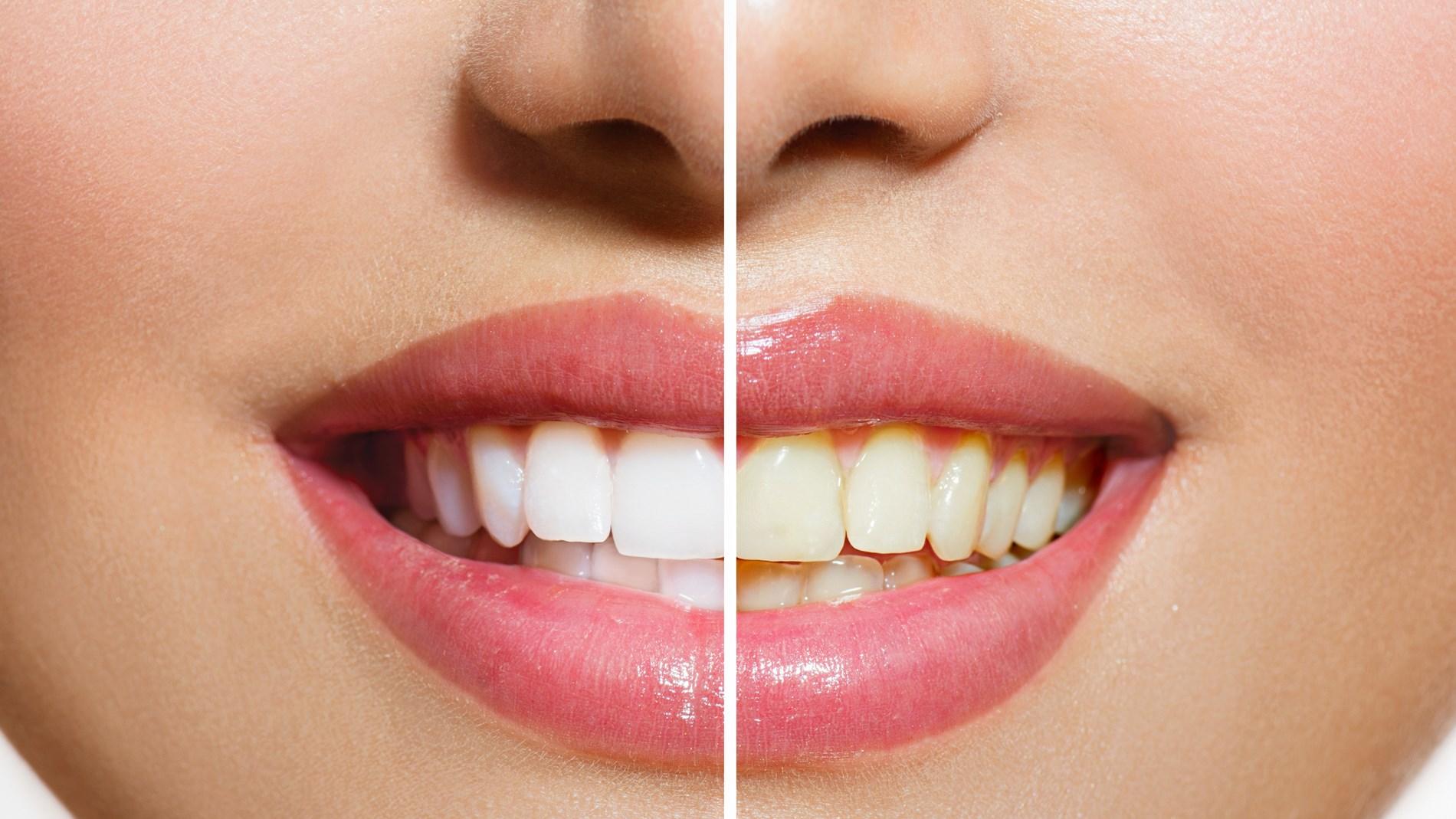 10 طرق فعالة لتبييض أسنانك داخل المنزل