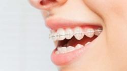 هل تحتاج أسنانك إلى تقويم ولا ترغب في الذهاب إلى الطبيب؟.. إليك الحل