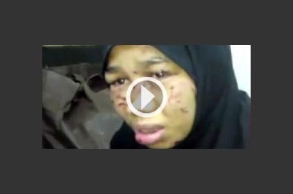 هل تم الاعتداء بالضرب على خادمة سامر المصري؟