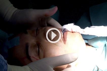 للقلوب القوية: شاهدي جراحة شد الوجه